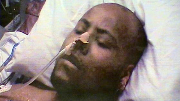 That Time Chicago Cops Got an Unconscious Man They'd Shot to Confess